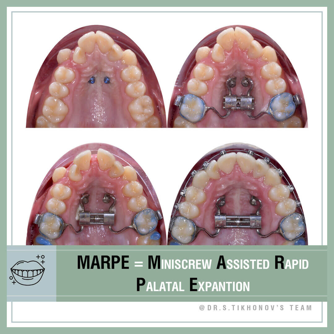 MARPE = Miniscrew Assisted Rapid Palatal Expantion.