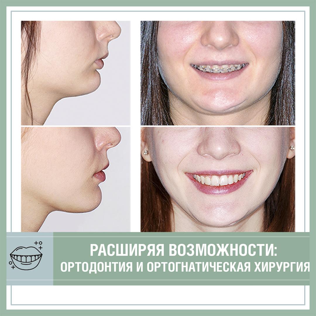 Расширяя возможности: ортодонтия и ортогнатическая хирургия.