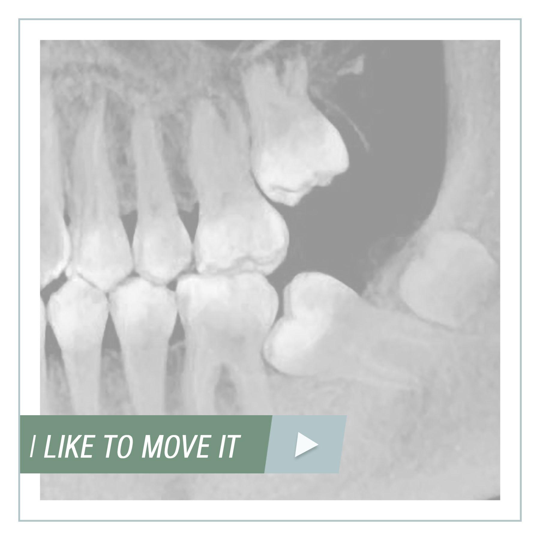 Частичная ортодонтия: ретенция второго моляра.