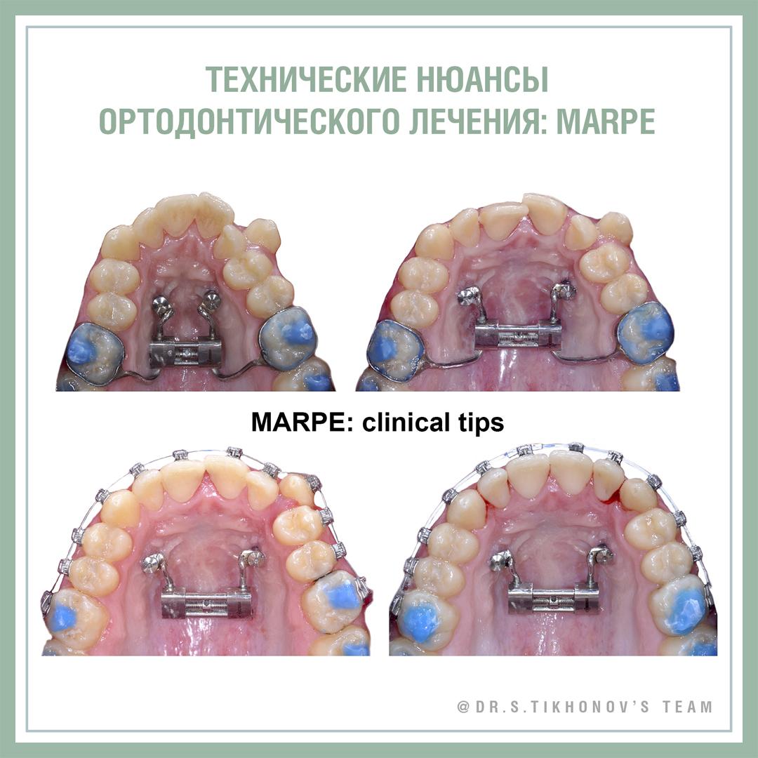 Технические нюансы ортодонтического лечения: MARPE