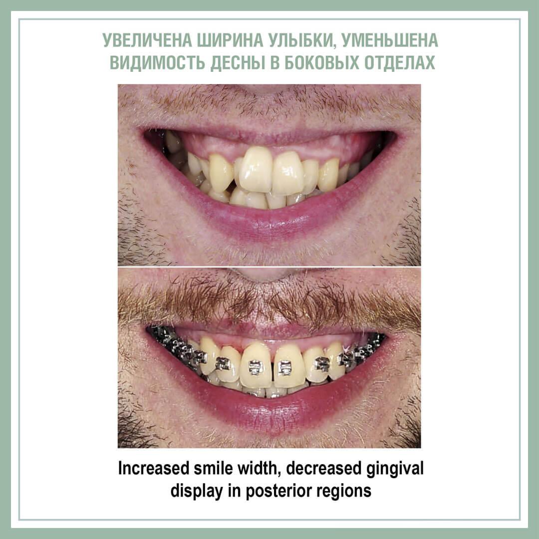 Использование минивинтов для одновременной коррекции Шпее и расширения зубного ряда