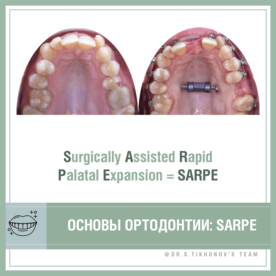 Основы ортодонтии. Surgically Assisted Rapid Palatal Expansion = SARPE