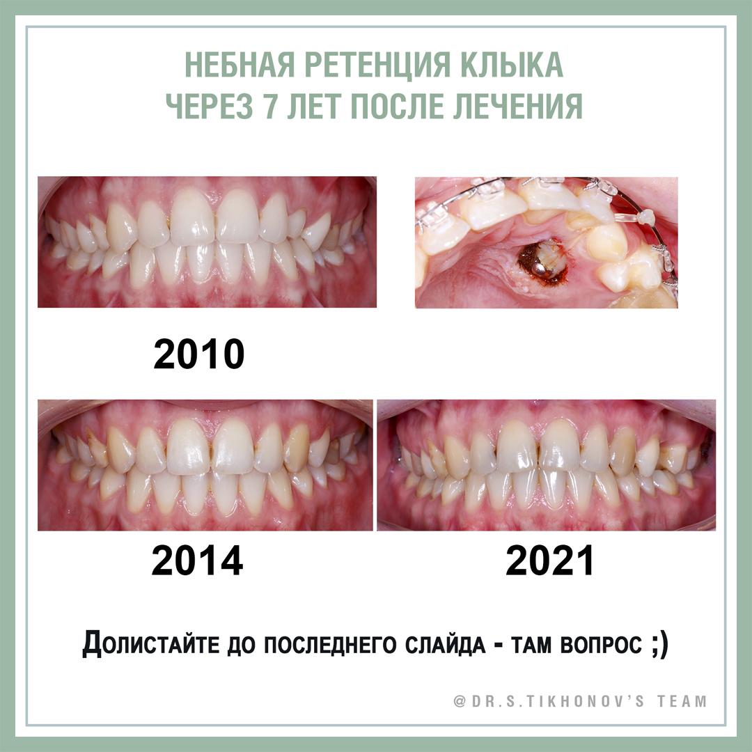 Небная ретенция клыка через 7 лет после лечения.