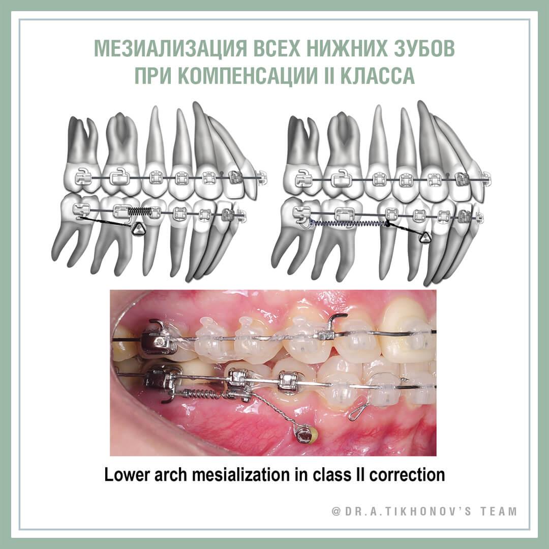 Мезиализация всех нижних зубов при компенсации II класса