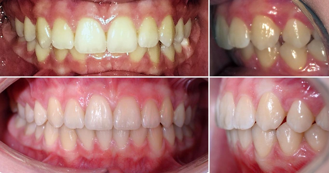 Выравнивание зубов без брекетов: возможно ли это?