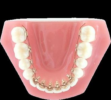 Установка брекетов с внутренней стороны зубов - революция в ортодонтии